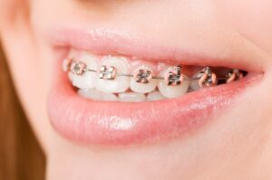 an example of the types of braces for teeth