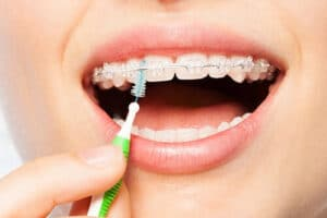 Patient learning Oral Healthcare In Review Proper Cleanings For Braces